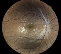 diabetic-retinopathy muratet pamiers eidon