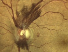 diabetic-retinopathy NEW VESSELS