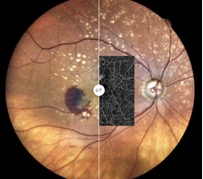 eidon-oct angiography optovue fundus amd