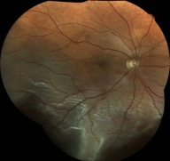 retinal-detachment eidon centervue